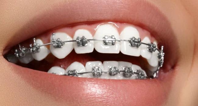 Ортодонтическая дуга!