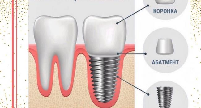 Способ восстановления зубов - имплантация.