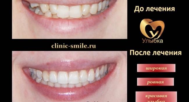 Красивая улыбка и ровные зубы после лечения брекетами.
