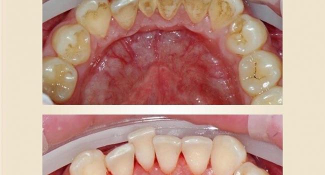 Результат после профессиональной гигиены полости рта.