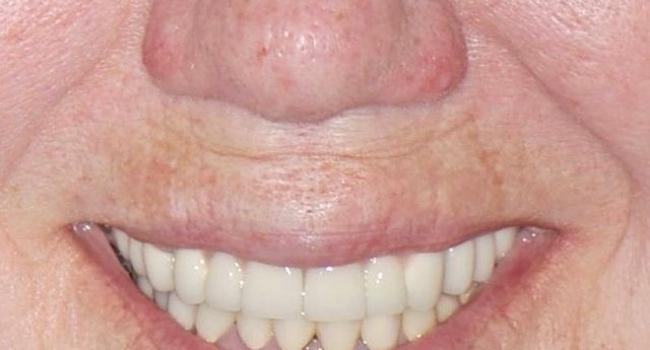 Результат восстановления зубов имплантами.