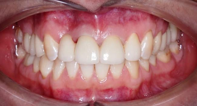 Результат протезирования зубов.