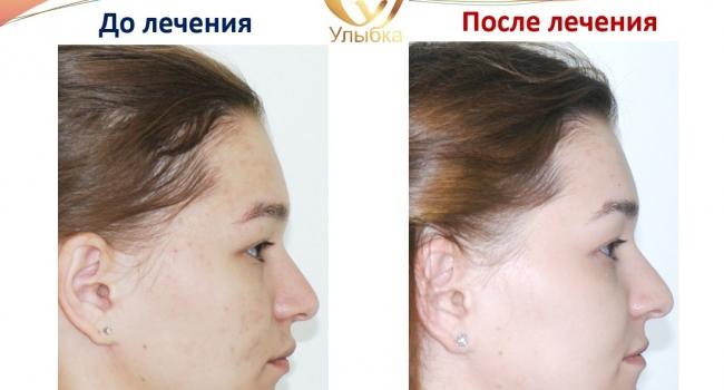 Результат после ортодонтического лечения.