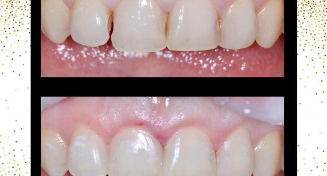 Эстетическая реставрация зубов.