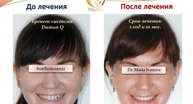 Хотите увидеть новую улыбку после лечения брекет-ситемой?