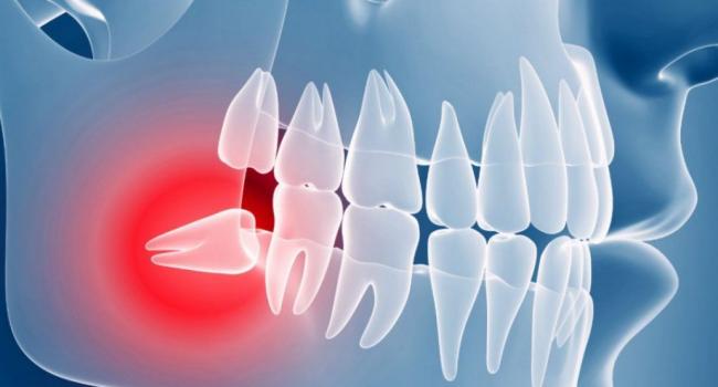 Ретенированный зуб.