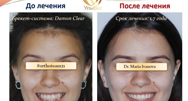 Результат после лечения брекет-системой!
