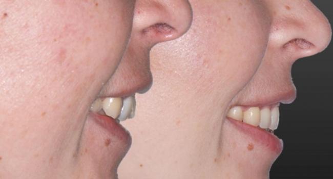 Идеально ровные зубы после лечения брекет-системой.