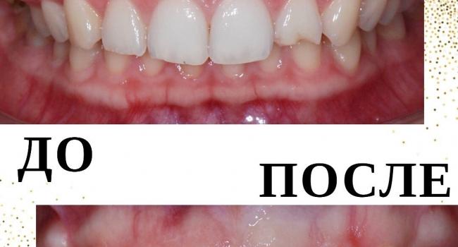Восстановление зуба после травмы керамическим виниром.