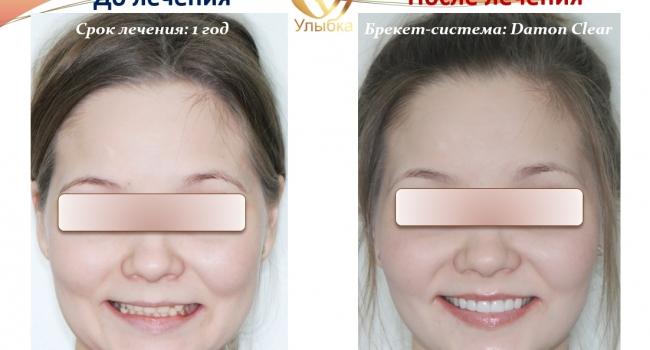 Идеальный результат после лечения брекет-системой и установки виниров.