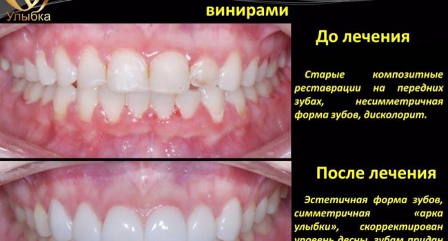 Реставрация зубов керамическими винирами.