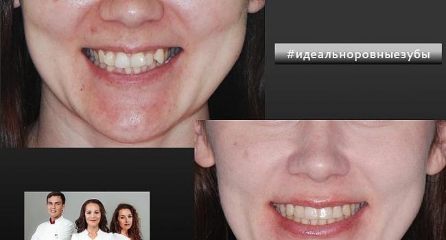 Идеально ровные зубы после ортодонтического лечения.