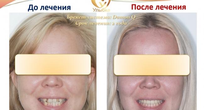 Сложный случай исправления прикуса и выравнивания зубов.