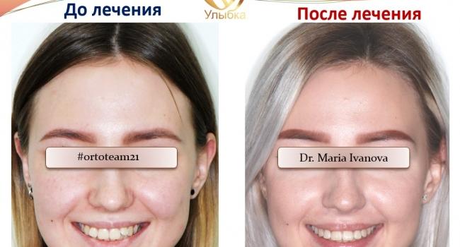 Фото ДО И ПОСЛЕ лечения брекет-системой!