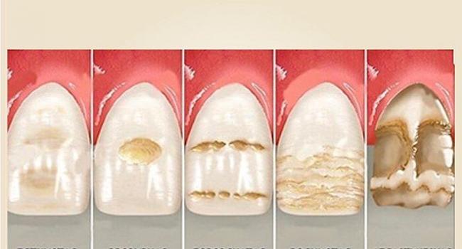 Гипоплазия зубов.