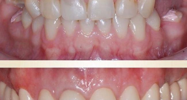 Результат имплантации зубов.