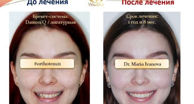 Пример ортодонтического лечения.