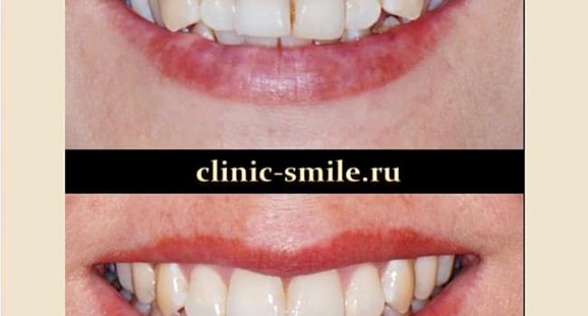 Результат ортодонтического лечения.