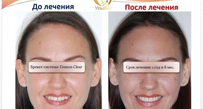 Фото после лечения брекет-системой.
