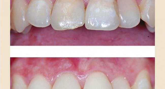 Результат реставрации передних зубов.