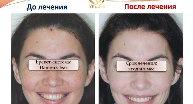 Красивая улыбка и ровные зубы после лечения брекет-системой!