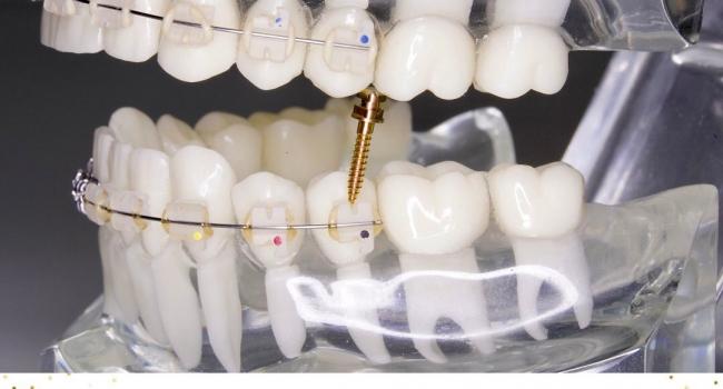Микроимпланты в ортодонтическом лечении.