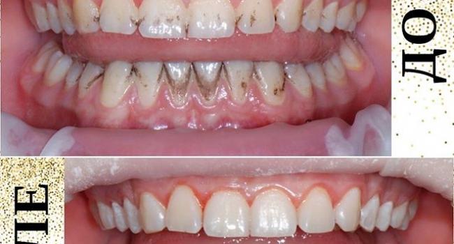 Результат профессиональной гигиены полости рта.