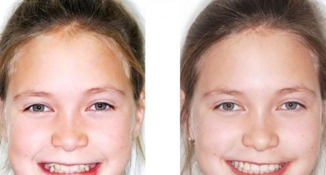 Ровные зубы и красивая улыбка после снятия брекет-системы!