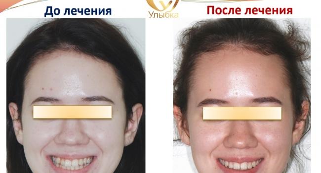 До и после лечения брекет-системой.