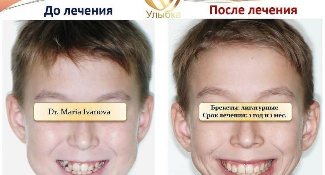 Безупречный результат после лечения брекет-системой.