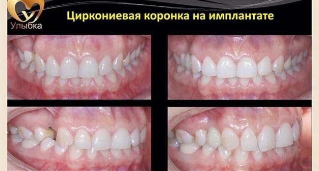 Результат  восстановления отсутствующего зуба.