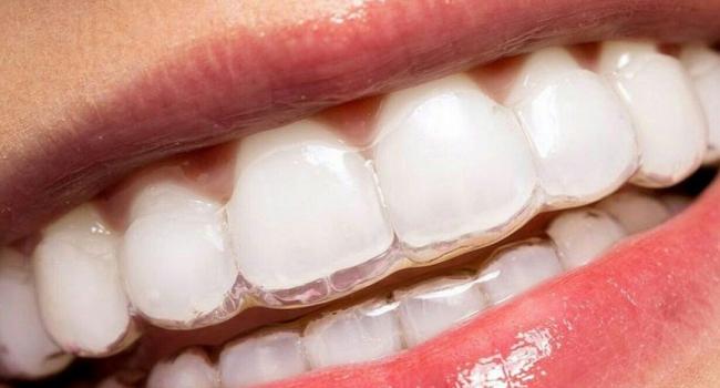 Каппы для исправления прикуса и положения зубов.