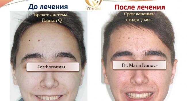 Неотразимая улыбка после лечения брекет-системой!