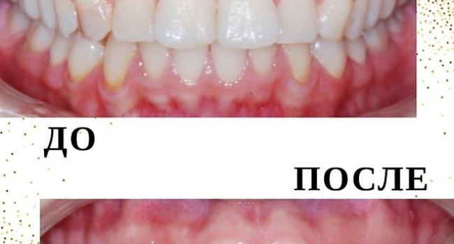 Результат исправления прикуса на одной челюсти.