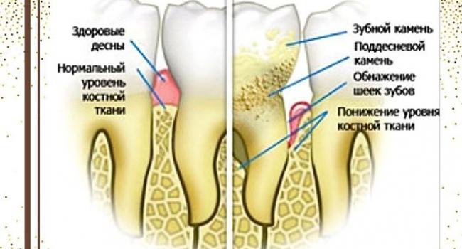 Причины образования зубного налёта.