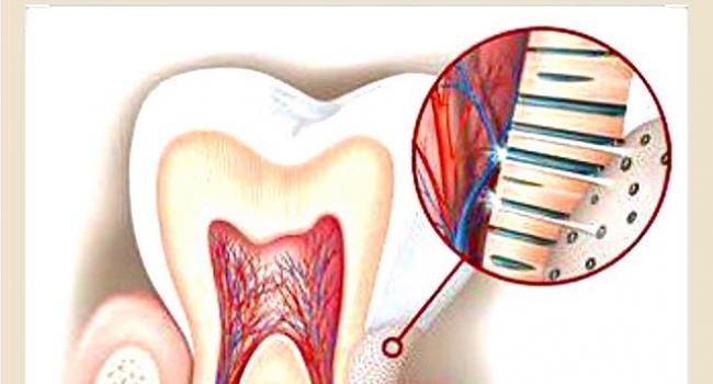 Лечение чувствительности зубов.
