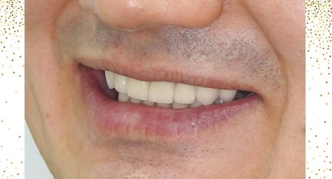 Эстетика зубов при помощи коронок.