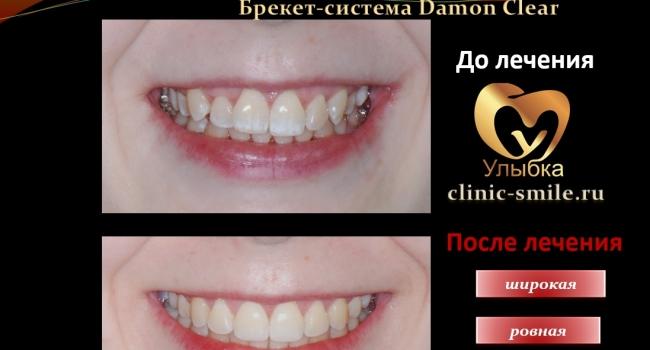 Результат лечения брекетами и через 1,5 года после снятия.