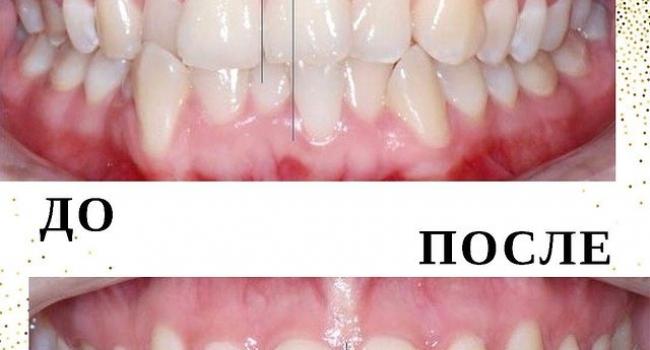 Результат исправления прикуса нашей командой ортодонтов.