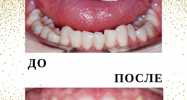 Результат исправления прикуса командой врачей-ортодонтов.