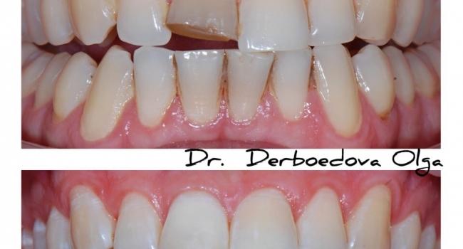 До и после реставрации переднего зуба.
