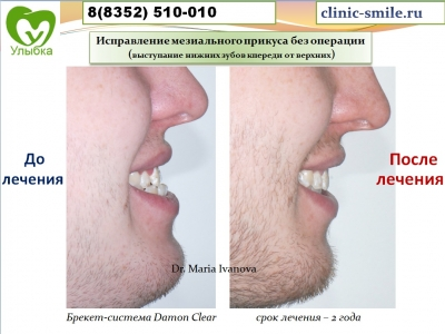 Результаты лечения брекет-системой Damon Clear