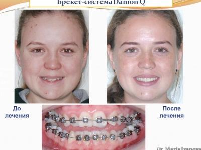 Результаты лечения брекет-системой Damon Q