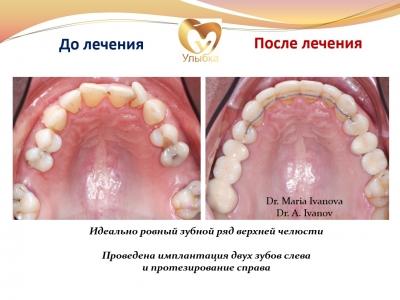 Было проведено лечение на брекет-системе, имплантация и протезирование._1