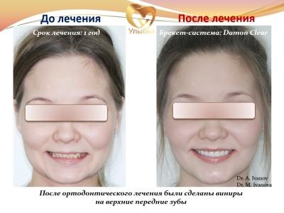 До и после установки виниров._1