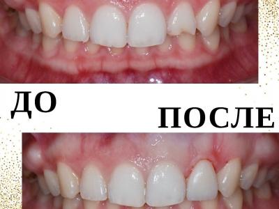 Восстановление зуба после травмы керамическим виниром._1