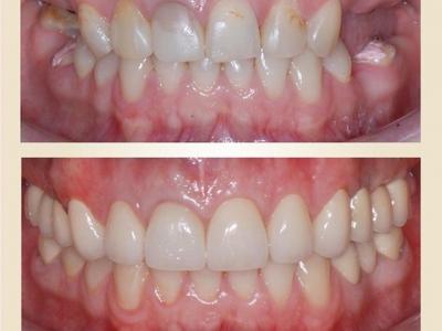 Восстановление зубного ряда с помощью имплантации _1