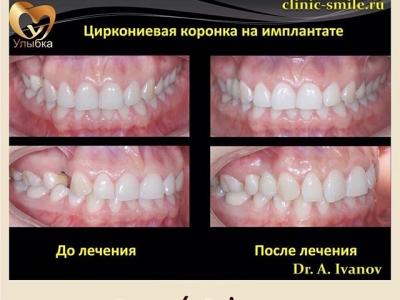 Восстановление отсутствующего зуба при помощи имплантации и циркониевой коронки._1