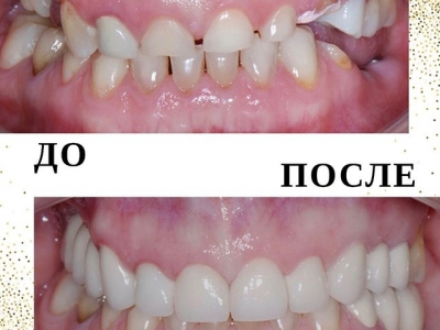 На передние зубы установлены коронки из диоксида циркония, на боковые зубы - металлокерамические коронки. Поставлены 2 импланта на нижней челюсти._1