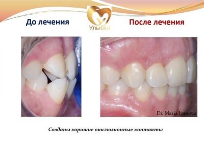 До и после лечения брекет-системой._10